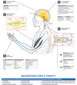 Wall Chart - Neuroscience of Acupuncture