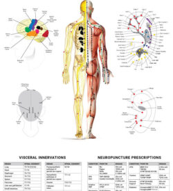 Wall Chart - Neuropuncture System